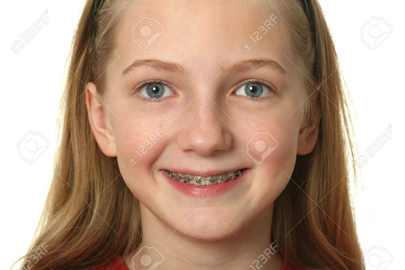 Very young girls with braces